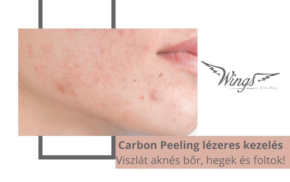 Carbon Peeling lézeres kezelés – Viszlát aknés bőr, hegek és foltok!